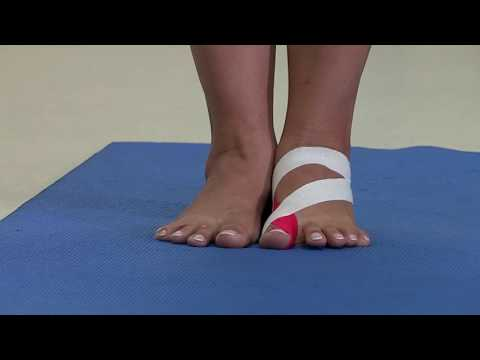 Деформация пальцев на ноге у ребенка