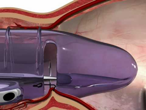Środki z hemoroidów dla matek karmiących