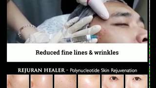 Rejuran Healer Skin RejuvenationTreatment