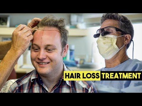 Amazing Hair Loss Treatment | Balding Man Gets Hair Transplant | BluMaan 2018