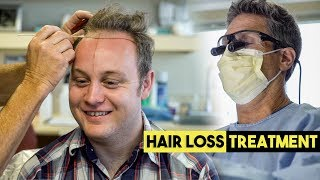 Amazing Hair Loss Treatment   Balding Man Gets Hair Transplant   BluMaan 2018