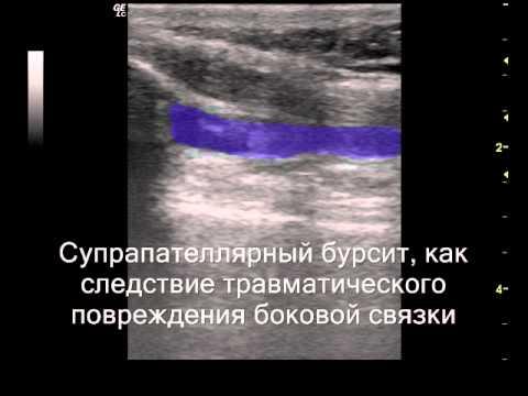 Частичный разрыв медиальной связки коленного сустава