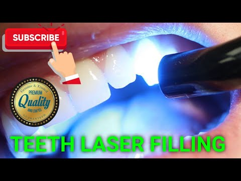 Teeth Laser Filling