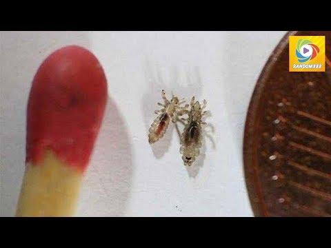Les parasites dans les organes génitaux féminins