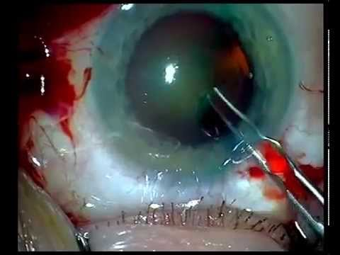Купон лазерной коррекции зрения