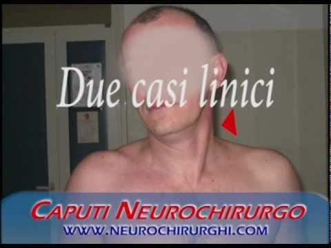 Trattamento delle lesioni della spalla e della colonna vertebrale nelle persone anziane