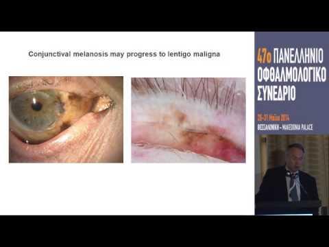 Adamsapfel Behandlung von Prostatitis