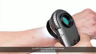 Dermatoscope(Medical microscope) youtube video