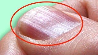 Was bedeuten die Rillen auf den Fingernägeln?