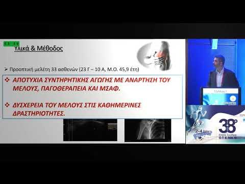 Τζέλλιος Ι. - Αντιμετώπιση ασβεστοποιού τενοντοπάθειας του μυοτενόντιου πετάλου του ώμου με διαδερμική έκπλυση