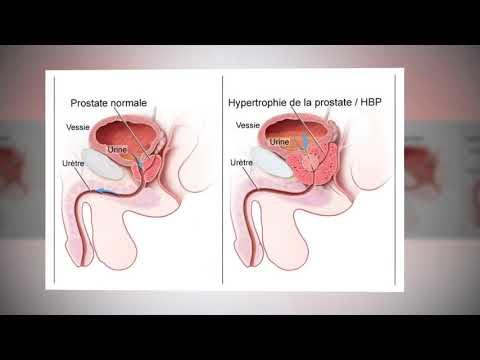 Le traitement de la prostatite chronique chez les hommes commentaires