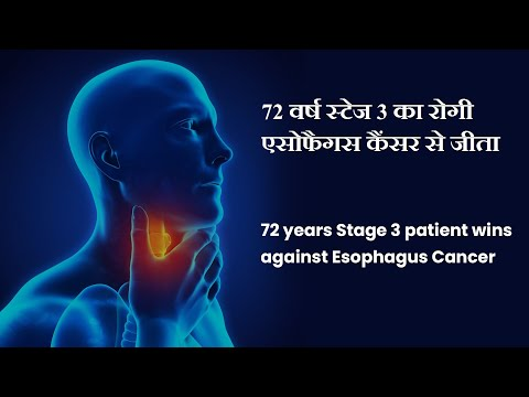 Cancer Healer Center successfully treated Esophageal cancer