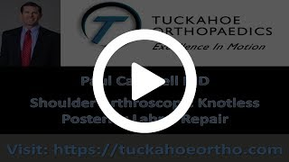Arthroscopic Knotless Repair of the Posterior Labrum Using LabralTape