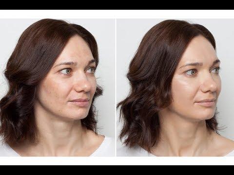 Избавиться пигментные пятна лице