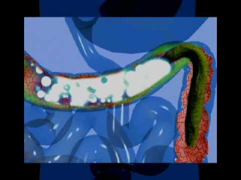 Hpv vírus a férfiak tüneteiben