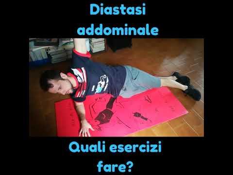 Cause di sciatica osteocondrosi