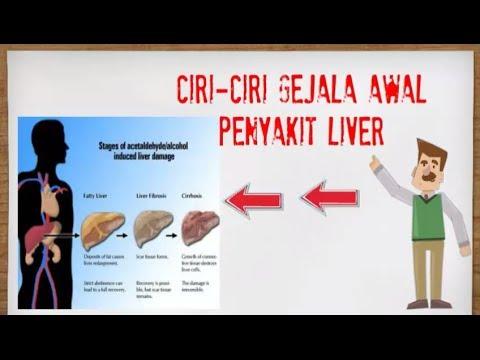 Video Ciri Ciri Gejala Awal Penyakit Liver