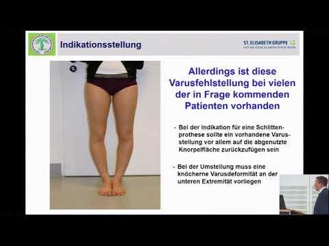 Kniegelenksarthrosen Volk Rezepte Behandlung