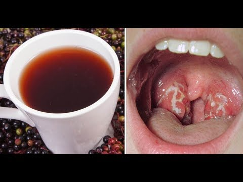 10 Remedies That Defeat Strep Throat In No Time!