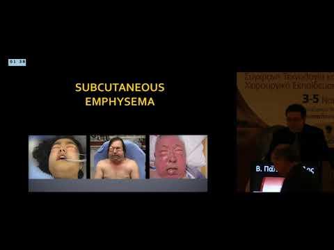 Β Παπαδόπουλος - Κοιλιακό τραύμα ανοικτή χειρουργική διερεύνηση