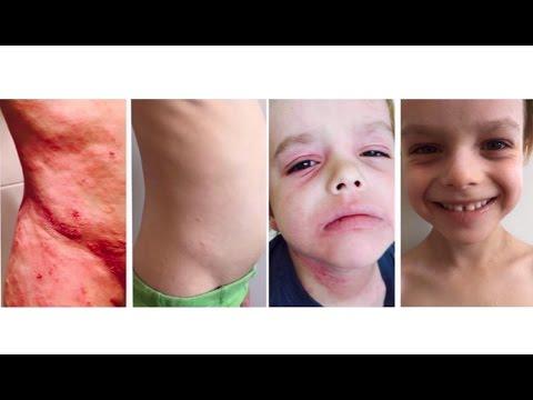 Cura di eczema su una palma