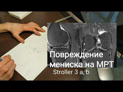 Повреждение мениска по МРТ 3а, 3б ( 3a, 3b ) степени по Stoller. Какая тактика лечения?