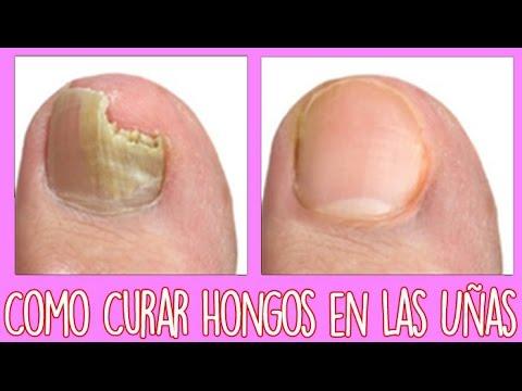 Que pastillas es necesario beber del hongo sobre las uñas de los pies