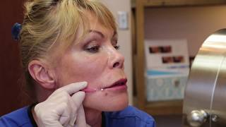 Demonstration of Threads Used to Enhance Lip Borders & Lift Mouth Corners