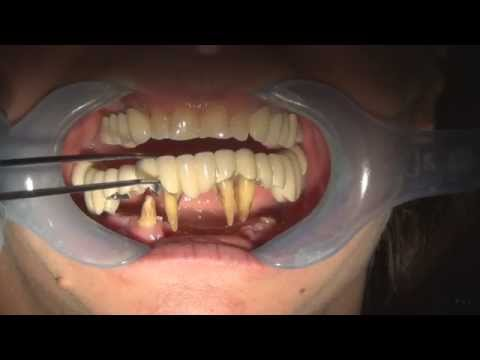 pulling teeth with no numbing and bleeding
