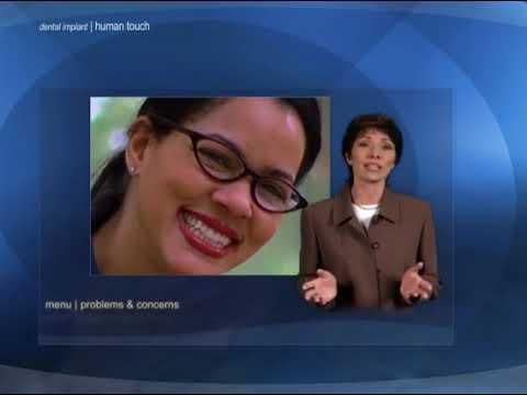 Dental Implants Presentation