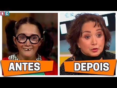 Chaves Veja o antes e o depois dos personagens