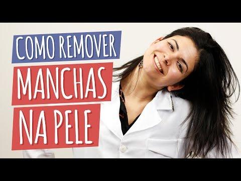 Imagem ilustrativa do vídeo: Melhores Tratamentos para Manchas na Pele