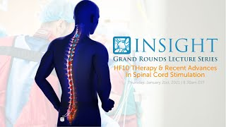Grand Rounds Video Lecture Series | HF10 Therapy and Recent Advances in Spinal Cord Stimulation
