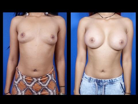 Bakit breast milk ay hindi sapat