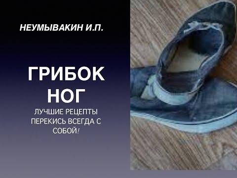Wie gribok in den Schuhen zu heilen