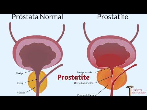 Sui benefici della masturbazione per la prostata