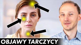 17 oznak, że Twoja tarczyca woła o pomoc! Niedoczynność tarczycy: objawy | Dr Bartek Kulczyński
