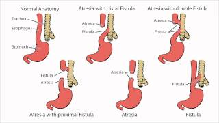 Esophageal Atresia - What is Esophageal Atresia