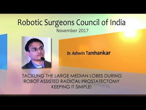 Tackling the Large Median Lobes During Robot Assisted Radical Prostatectomy- Keeping it Simple!
