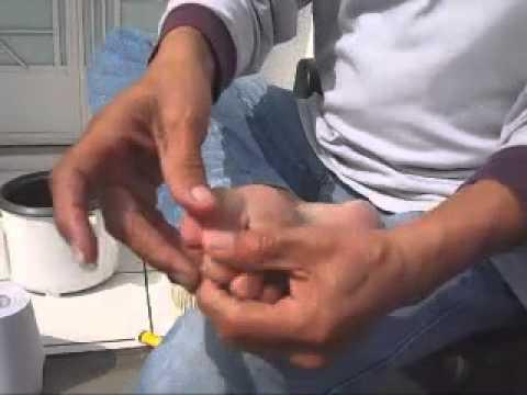 La uña encarnada al niño 3 años el tratamiento