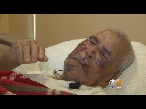 Man, 92, Hit With Brick In Brutal July 4 Attack
