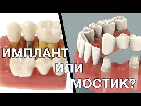 Имплант или зубной мостик. Что лучше выбрать? Имплантация зубов. Мост зубной.
