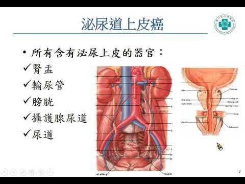 認識泌尿道上皮癌(陳正哲醫師)