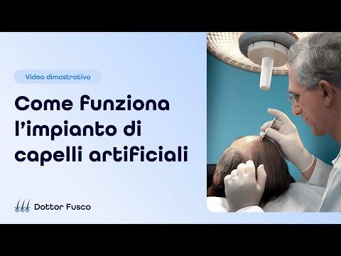 Dottor Fusco - L' impianto di capelli artificiali