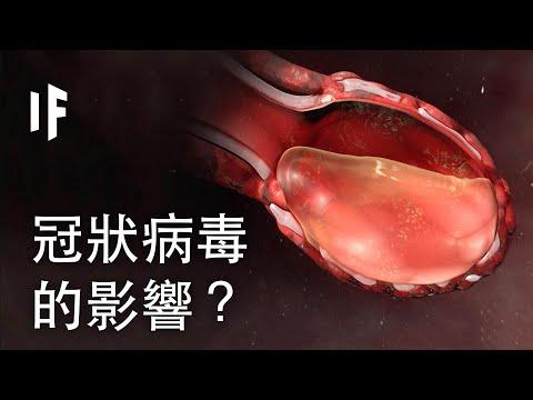 染上冠狀病毒會發生甚麼事?