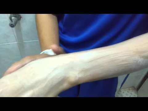 การสำรวจ thrombophlebitis