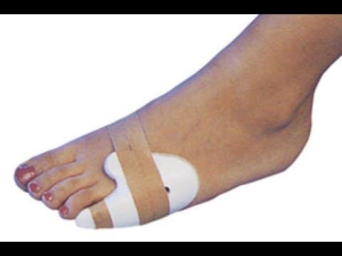 Деформирующий артроз фаланговых суставов лечение