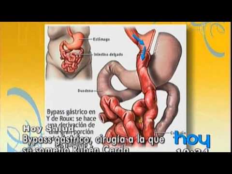 Erhöhte Blutzucker Ursachen und Behandlung