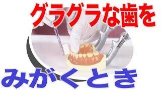 グラグラして抜けかかっている歯の口腔ケア