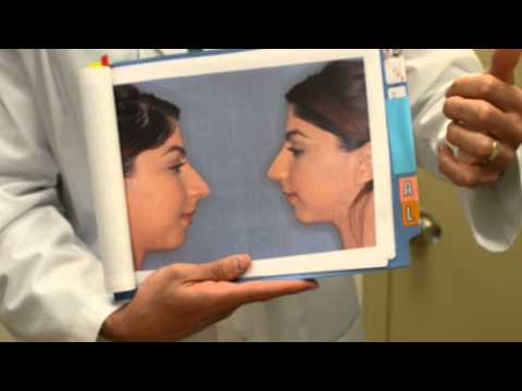 Rhinoplasty - Overprojected Nose
